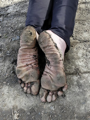 Earth soles (Barefoot Adventurer) Tags: barefoot barefooting barefoothiking barefeet barefooter barefooted baresoles barfuss earthsoles earthstainedsoles earthing wrinkledsoles walking wetmud muddysoles muddyfeet muddy toughsoles strongfeet stainedsoles healthyfeet happyfeet hardsoles toes callousedsoles callouses connected winterbarefooting anklet autumn ruggedsoles roughsoles