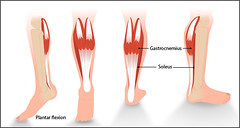 Calf muscles (interactive.content) Tags: spasticity stroke tone muscletone chestheartstrokescotland neuroanatomy corticaltracts spinalreflexes theuniversityofedinburgh anatomy physiology flaccidity musclecontracture muscle