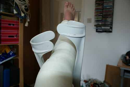 knie in gips