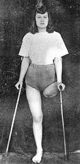 Vintage high lak amputee (jackcast2015) Tags: handicapped disabled disabledwoman cripledwoman onelegwoman oneleggedwoman monopede amputee legamputee crutches crippledwoman