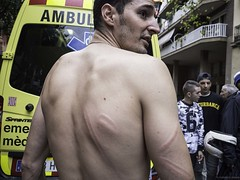 Catalan independence referendum, October 1 2017. A man shows the wounds on his back caused by the police near Ramon Llull polling station in Barcelona. ©Federico Verani (Federico Verani) Tags: barcellona barcelona catalogna catalunya catalonia spain europe referendum catalanreferendum vote injured clashes police voterem independencia street people documentary photography october 2017 1o