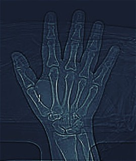 Talkin bout that #bodyhacker life. Had a CT scan done for an injury (no answers yet- at least not a stress fracture) - but it's the first image I've gotten with my @dangerousthings chip. This one will send you to the @bdyhax website :P wanna join us? Tick