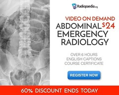 Final day for discount access to our new Video On Demand Course. Register for $24 and help support free access for people in 119 low and middle-income countries. 👉 Visit bit.ly/abdovod (Radiology Signs) Tags: radiology medicine doctors radiologist radiographer radiologic technologist medical school me