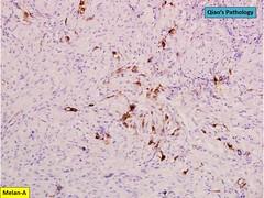 Qiao's Pathology: Fat Poor Renal Angiomyolipoma (Qiao's Pathology (Art and Science in Medicine)) Tags: qiaos pathology fat poor renal angiomyolipoma microscopic ihc melana
