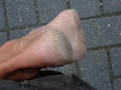 P1010063 (dirtyfeet74) Tags: barefeet barefoot dirtyfeet cracked heel