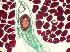 M2a_001_muscle strié squelettique_skeletal muscle_cachalot sperm whale (Franck Genten) Tags: histologie histology microscopie microscopy biologie biology science mammifère mammal vivant living couleurs colours artexperiences art artvisuel cachalot spermwhale trichromemasson trichrome muscle musclesquelettique skeletalmuscle artefact physeter malcolmclarke pico açores azores architeuthis squid calmar capillaire capillary hémoglobine haemoglobin