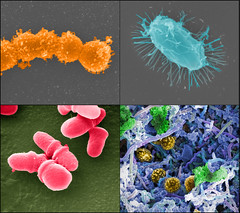 Human Microbiome Project (HMP) (National Institutes of Health (NIH)) Tags: nihimagegallery nigms hmp microbiome microbes strep streptococcus biofilm bacillus malassezialopophilis