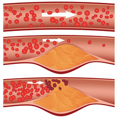 Cholesterol Plaque in Artery - Arteriosclerosi (josemalleida) Tags: anatomy art artery atheromas atherosclerosis attack biology biomedical blockage blocked blood build buildup burst cardiology cardiovascular care cells cholesterol circulation circulatory clip clipart clogged clot clotting congestion coronary cross diet disease fat fatty flow formation health healthcare healthy heart high human illustration infarction lifestyle lipids medical myocardial narrow narrowed occlusion plaques pressure progression red rupture rupturing saturated science scientific section stenosis streaming stroke system vector vessel
