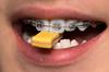 Chewing on a stick of gum (A  Train) Tags: macromonday macro tamron70200g2 lips teeth braces gum stick stickofgum gumstick chew tridentgum tridentlayersgum nikond750 nikon