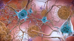 Beta-Amyloid Plaques and Tau in the Brain (National Institutes of Health (NIH)) Tags: nihimagegallery nia alzheimers betaamyloidplaques tau abnormaltau brain neurons synapse