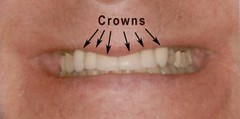 Crowns (hiltonfamilydentistry) Tags: cerecdoctors familydentists invisalignreviews hilton ny unitedstates usa