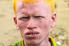 This man came from Rakhine State (Galib Emon) Tags: portrait rakhinestate rohingya refugee man colors genocide humanrights ukhia chittagong bangladesh rohingyaissue eyes face influx people rohingyarefugee rohingyarefugeecrisis aidforrohingya rohingyarefugeeinbangladesh crimesagainsthumanity myanmar photojournalism galibemon street streetphotography aidsearching un burma violations humanity militarycrackdown arakanrohingya salvationarmy help rohingyarelief rohingyapeople rohingyaportrait refugeeportrait homeless refugeecamp explore unchiprang teknaf coxsbazar global world travel worldwide hopeless unhcr september 2017 1millionrohingyarefugeesinbangladesh dof stoptheviolenceagainsttherohingyainmyanmar naturallight unchiprangmakeshiftcamp crossedtheborderintobangladesh curious explorebangladesh exploreworld unicef unchiprangrohingyarefugeescamps victim daylight canoneos70d