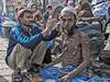 INDIA8592/........Kaan-saaf walla (Glenn Losack, M.D.) Tags: india earcleaning ear cleaning kaan maeliye poor photojournalism streetphotographer neurofibromatosis