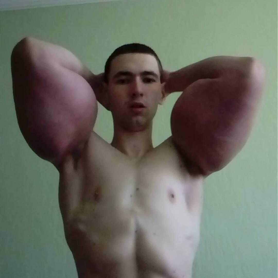 Chàng trai tự tiêm dầu vào người để có bắp tay khổng lồ như lực sĩ - Ảnh 1.