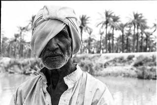 In the Southern region of Iraq Saddam Hussein burnt some places with Napalm. This man survived but lost an eye.