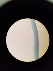 20171203_151020 (scientiaannotator) Tags: microscopic known hair fibers assignment11