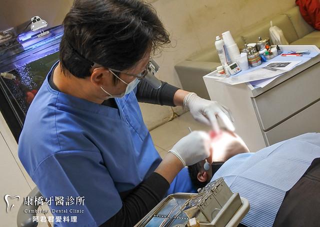 康橋牙醫_14_板橋植牙新北市植牙台北牙醫推薦牙醫診所推薦_阿君君愛料理-2022