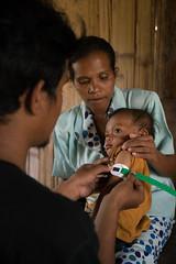 Malnutrition Story UNICEF, Timor, Indonesia (ReinierVanOorsouw) Tags: unicef indonesia indonesie indo kupang timor timorisland westtimor ngo malnutrition undernourishment ondervoeding reinierishere reiniervanoorsouw reizen humaninterest human people developmentwork ɪndonesia إندونيسيا sonya7r sony sonya7rii travel travelphotography koepang کوپانگ