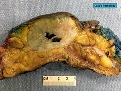 Qiao's Pathology: Malignant Phyllodes Tumor of the Breast (Qiao's Pathology (Art and Science in Medicine)) Tags: qiaos pathology malignant phyllodes tumor breast gross