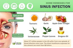 15 Natural Home Remedies For Sinus Infection (Sinusitis) (swethajanany) Tags: home remedies for sinus infection