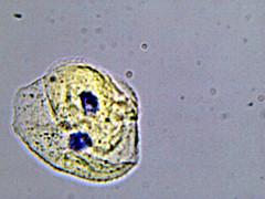 Cheek Cells (mine) (EmperorNorton47) Tags: portolahills california photo digital winter microscope microscopy microscopic humancells cheekcells selfie anatomy physiology amscopedigitalmicroscopecamera