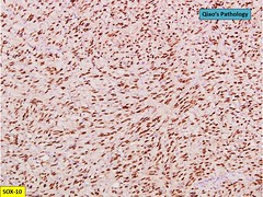 Qiao's Pathology: Giant Pelvic Schwannoma (Qiao's Pathology (Art and Science in Medicine)) Tags: qiaos pathology giant pelvic schwannoma microscopic ihc sox10