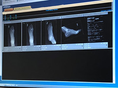 Oops I Did It Again (Jill Clardy) Tags: xray foot metartasal fracture fractured toe boot broken podiatrist break rsi injury 365the2018edition 3652018 day47365 16feb18