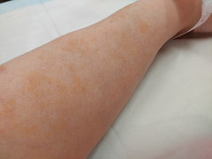 30Nov17 Rust spots! I was having my last iron infusion and something went briefly wrong enough to give me a mild rust coloured rash where the fluid escaped my vein into little capillaries. The stains are still there, but lighter. #latergram #2017pad #phot