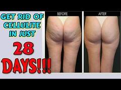 ♫♫ Best Cellulite Treatment ♥ START TODAY ♥ Anti Cellulite Treatment That Works :))))) (fspoon22) Tags: ♫♫ anti best cellulite start today treatment works