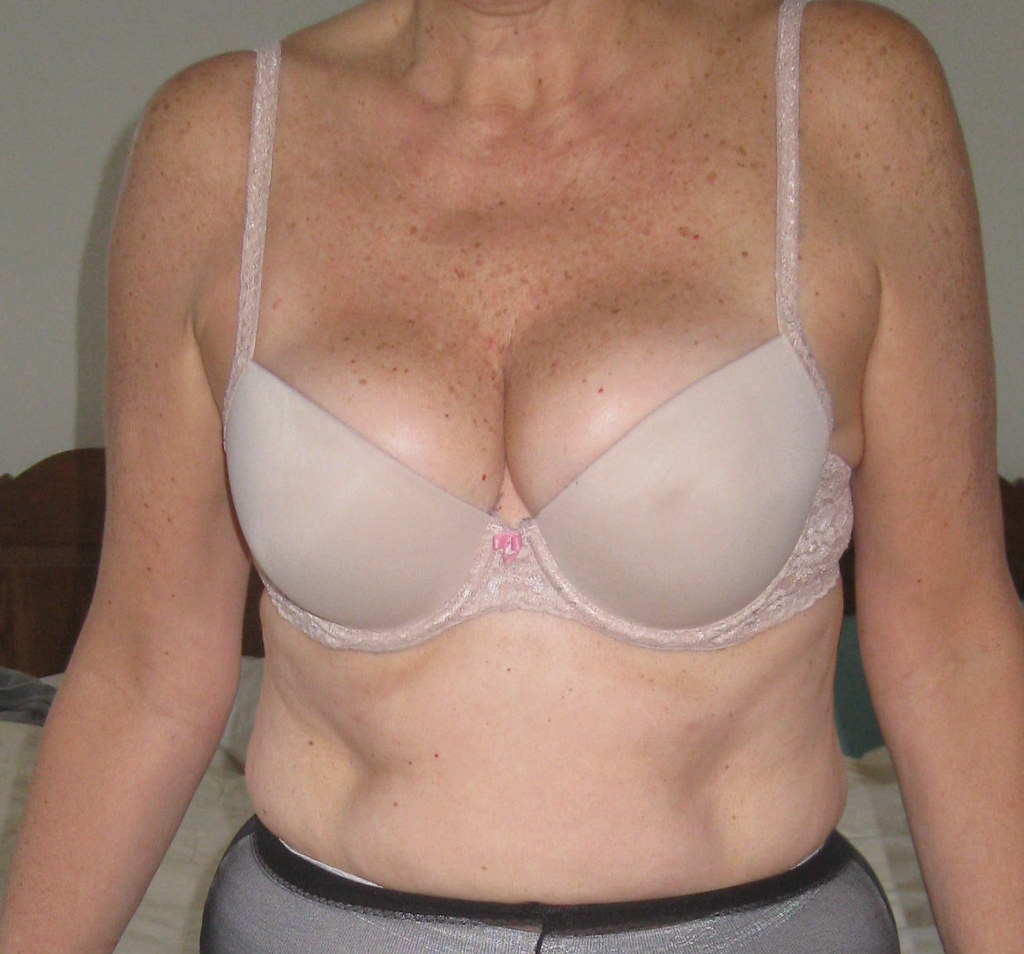 guestbook breast 2.3 advanced