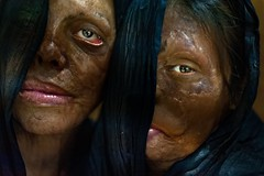 Stop acid attacks (silvia.alessi) Tags: sofferenza project asia skin violence delhi india portrait society photojournalism ngc stopacidattack women acidattack skinproject veil travel reportage