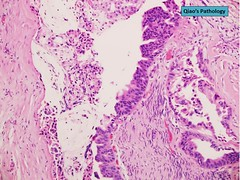 Qiao's Pathology:  Pancreatic Ductal Adenocarcinoma with Perineural Invasion (Qiao's Pathology (Art and Science in Medicine)) Tags: qiaos pathology pancreatic ductal adenocarcinoma perineural invasion microscopic