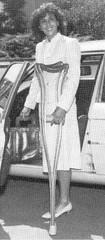 slingtp A 1980s monopede (jackcast2015) Tags: handicapped disabled disabledwoman cripledwoman onelegwoman oneleggedwoman monopede amputee legamputee crippledwoman