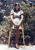 MARILYN13 - Hip Disarticulation Amputee (jackcast2015) Tags: handicapped disabledwoman crippledwoman crutches amputee hdamputee