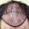 Get Successful FUE hair Transplant (VJ Clinics) Tags: fue hair transplant visakhapatnam cost