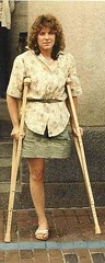 1980s Amputee Girl (jackcast2015) Tags: handicapped disabled disabledwoman cripledwoman onelegwoman oneleggedwoman monopede amputee legamputee crutches crippledwoman