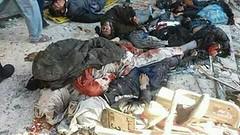 مسجد لرز گئی تھی دھماکوں کے شور سے حورروں کی آرزو نے کئی گھر جلا دیئے افغان دارالحکومت کابل میں شیعہ مرکز تبییان اور شیعہ مسجد پر 2 خودکش دھماکے ،62 افراد شہید جبکہ 120 سے زائد افراد زخمی۔ تکفیری خوراج عالمی دہشت گرد تنظیم داعش نے ذمہ داری قبول کرلی (ShiiteMedia) Tags: shia news killing 2017 shiite media urdu pakistan islami payam aein abbas muharam 1439 ashura genocide شیعت میڈیا ، شیعہ نیوز، channel q12 shiitenews abna newa latest india alert karachi tv shiatv110