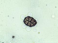 Spegazzinia sp. (Wilhelm Guggisberg) Tags: ascomycetes ascospores spores fungus mold microscopic
