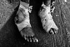 Delhi, 16.11.17 (krishudds) Tags: x100t man delhi travelphotography india fuji streetphotography bandages feet documentaryphotography olddelhi