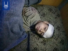 A young boy injured in Syria.