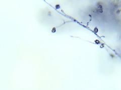 Mold (EmperorNorton47) Tags: portolahills california photo digital winter mold microscope microscopic photomicrography nature christmasberry toyon chaparral amscopedigitalmicroscopecamera