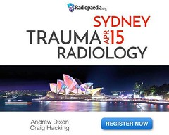 One day interactive review of trauma radiology with radiologists Dr Andrew Dixon and Dr Craig Hacking at RPAH. Learn more at bit.ly/trauma2018 (Radiology Signs) Tags: radiology medicine doctors radiologists xray