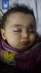 A baby injured in Syria.