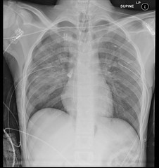 What are the 2 main findings on this trauma chest x-ray? ANSWER: https://goo.gl/ncT1vB Case courtesy of Sachintha Hapugoda (Radiology Signs) Tags: radiology medicine doctors radiologists xray