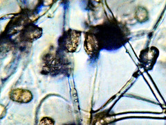 Mold (EmperorNorton47) Tags: portolahills california photo digital winter mold microscope microscopic photomicrography toyon christmasberry amscopedigitalmicroscopecamera
