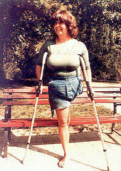 ELLEN01a (2) (jackcast2015) Tags: handicapped disabledwoman crippledwoman crutches amputee hdamputee hipdisarticulation
