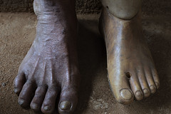 Prosthetic foot (Arddu) Tags: prosthetic mine khmerrouge foot amputee cambodia