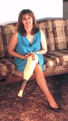 TAMRA1 and peg leg (jackcast2015) Tags: sbkamputee belowkneeamputee amputee crippledwoman disabledwoman handicappedwoman peg leg pegleg