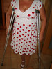 amp-1558 (vsmrn) Tags: amputee woman crutches onelegged nylon pantyhose