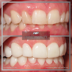 ba1 (hollywoodsmilelebanon) Tags: hollywood smile lebanon beirut makeover dental tourism whitening cosmetic dentistry laser clinic